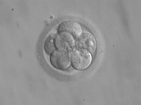 During <em>in vitro</em> fertilization, embryos that have only 8 cells, such as the one shown here, are implanted into the uterus of a woman.