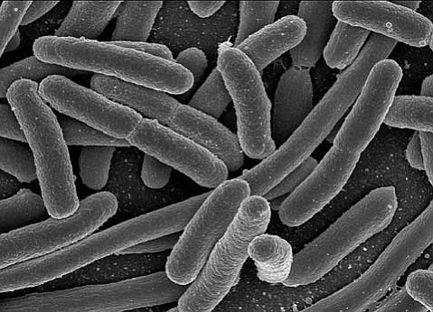 Decades of study into how to manufacture products using genetically modified bacteria (usually <em>E. coli</em>, shown above at high resolution), have made available to us today an astounding array of medical and food creations generated in such modified <em>E. coli</em>; we've even coaxed these critters into producing silk and pictures!