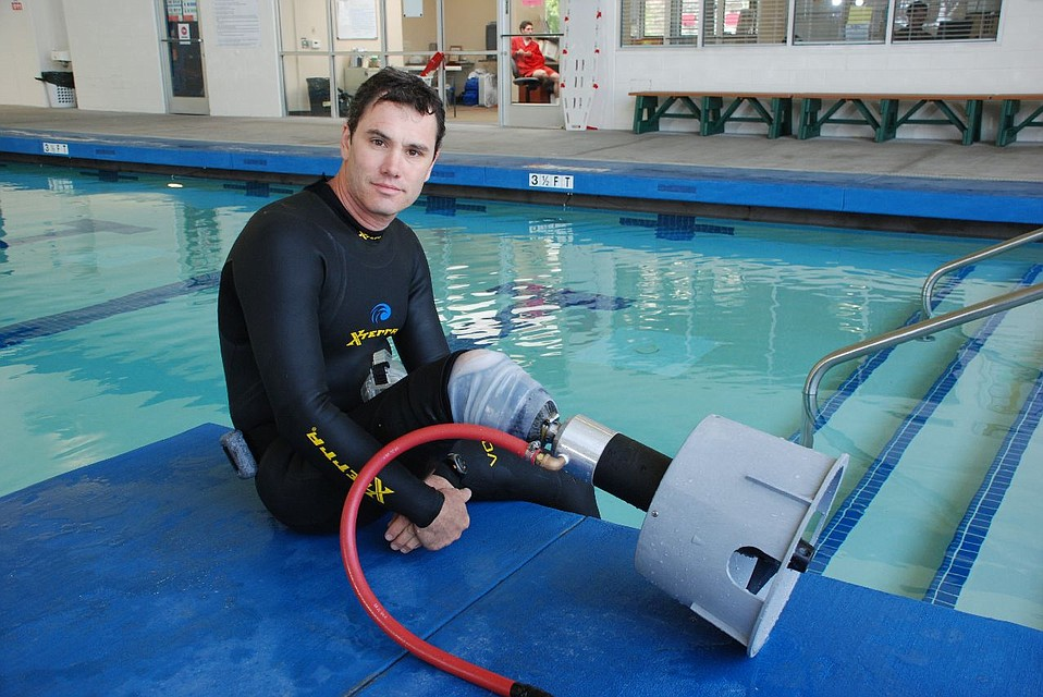 Casey Pieretti with propeller prosthetic