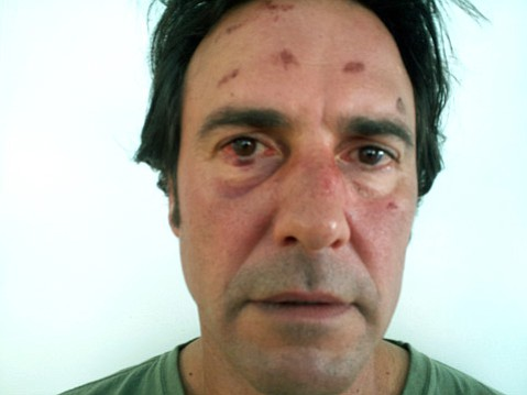 Tony Denunzio shortly after his October 2011 arrest for alleged DUI