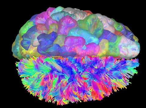 This brain image represents a dataset from the study and the regions used as nodes.