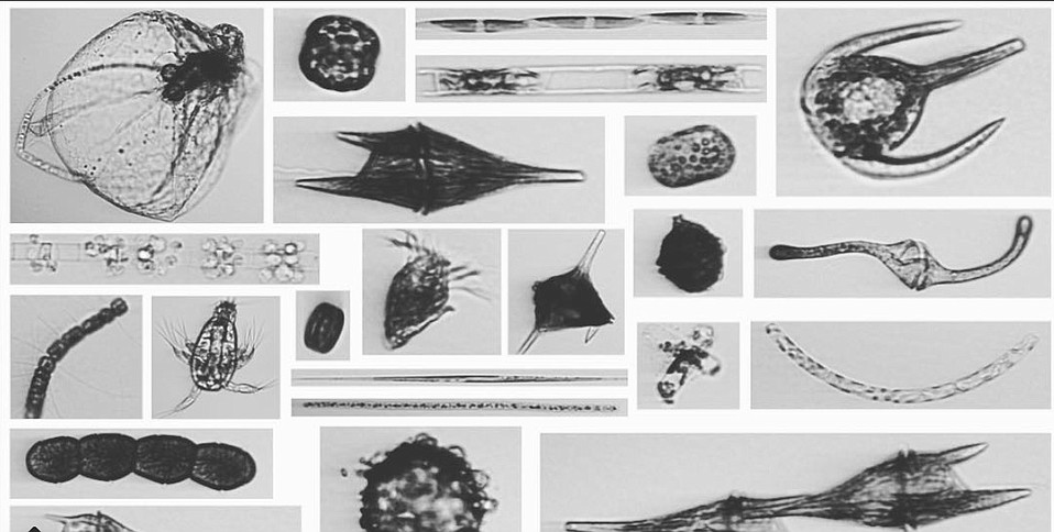 Images of cells like these seen on the Imaging Flow Cytobot could tell scientists who's eating whom, their health, and the amount of ash in the water.